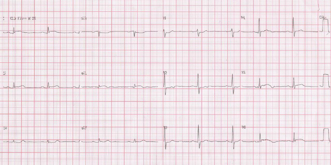 Paciente de 51 años con cuadro de SCACEST por obstrucción de la arteria marginal de la Cx
