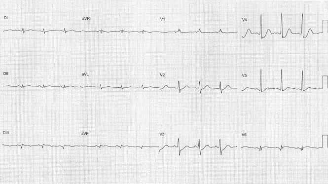 Paciente de 62 años con infarto ínfero basal por lesión de Cx con fracaso de reperfusión, isquemia de músculo papilar e IM severa y TV fascicular