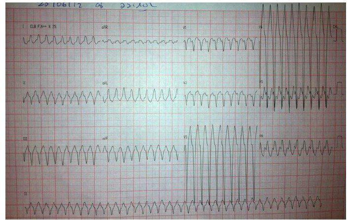 Paciente de 50 años portador de vía anómala y usuario de crack