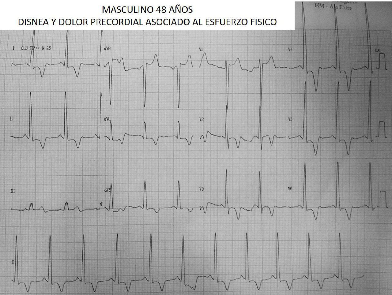 Paciente de 48 años portador de miocardiopatía hipertrófica apical con angor y disnea de esfuerzo