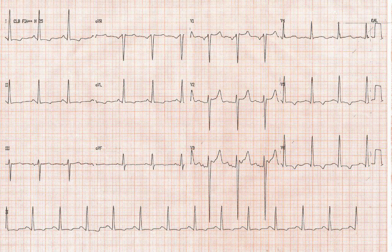 Mujer de 53 años hipertensa, con soplo sistólico aórtico por coartación aórtica