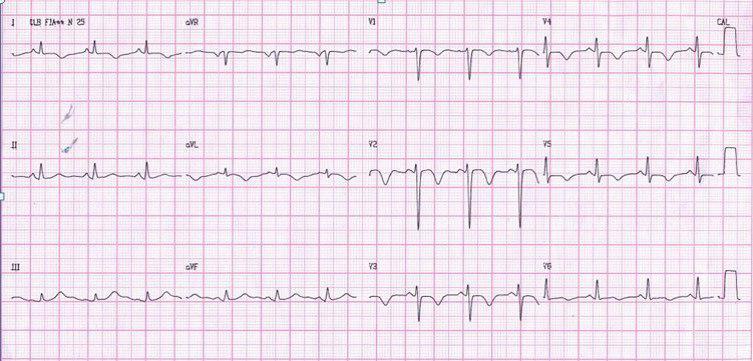 Paciente coronario crónico que presenta pseudonormalización de la onda T intradolor tratado con angioplastia