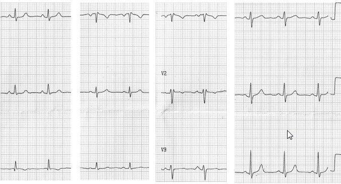 ECG de rutina en mujer joven con patrón rsr' en V1 por pectum excavatum