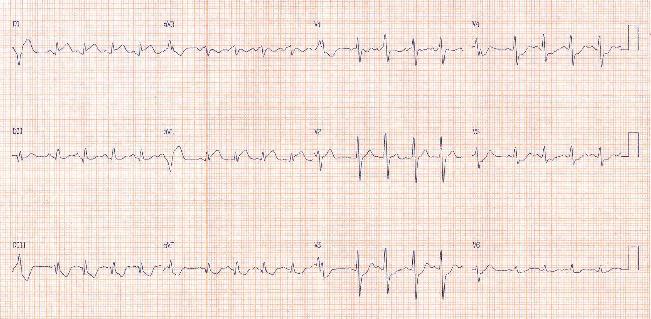 Paciente de 52 años con revascularización hace tres semanas, presenta angor prolongado e inestabilidad hemodinámica