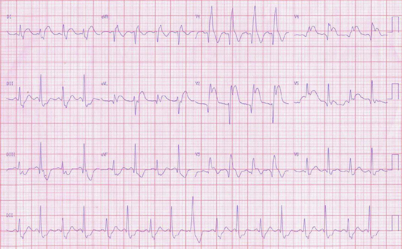 Síndrome coronario agudo por oclusión proximal de DA con severo trastorno de conducción bilateral con fracaso de la angioplastia aunque mejora de la conducción