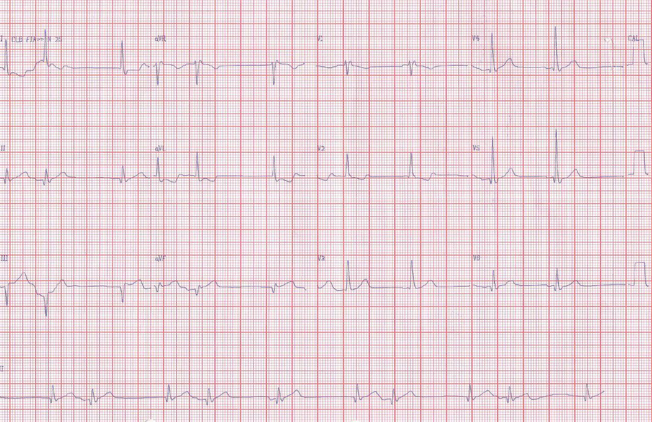 Hombre de 66 años con angor prolongado por compromiso de CD con infarto de aurícula y ritmo escape captura