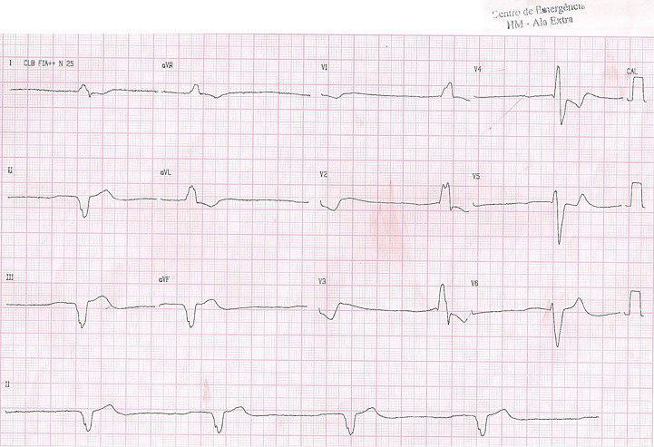 Masculino de 71 años con insuficiencia cardíaca por miocardiopatía dilatada chagásica y signos de intoxicación digitálica