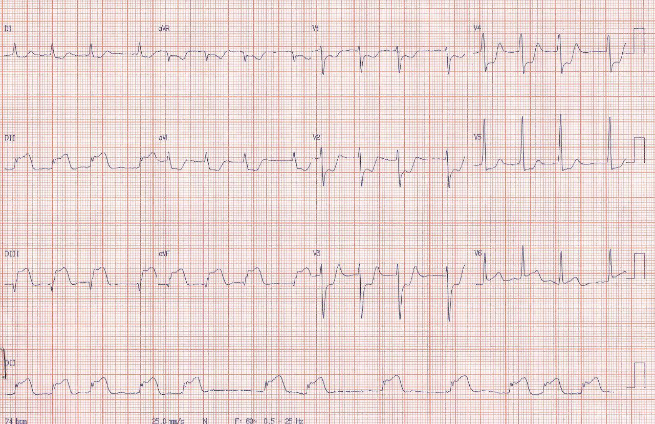 Paciente de 82 años con SCA por lesión y trombo de CD proximal que migra a distal