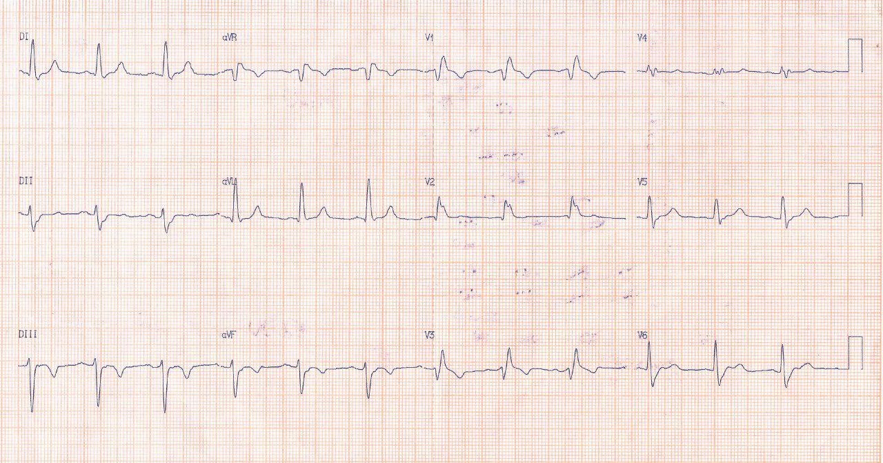 Paciente de 90 años con síncope y precordialgia atípica. Doble lesíón aórtica leve. Presenta TV y arterias coronarias normales