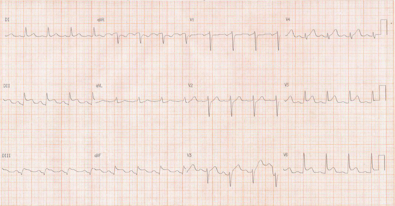 Paciente de 34 años con ardor precordial, pequeño derrame pericárdico en el eco y CCG normal por pericarditis aguda