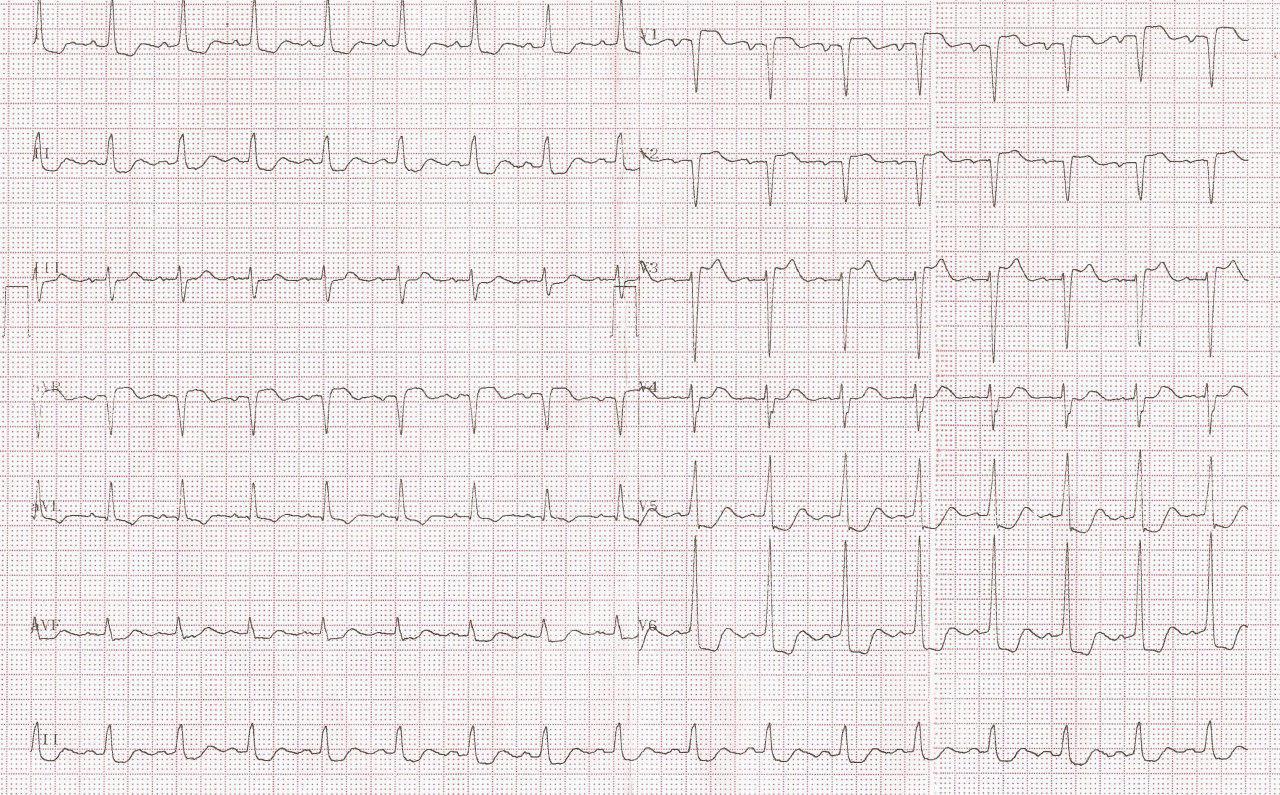 Paciente de 87 años con angor prolongado por enfermedad coronaria multivasos