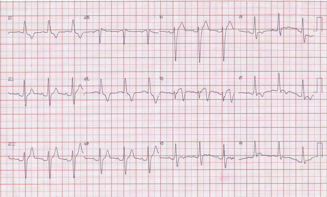 Hombre de 78 años hipertenso, IRC, con fiebre e hiperpotasemia que se corrige