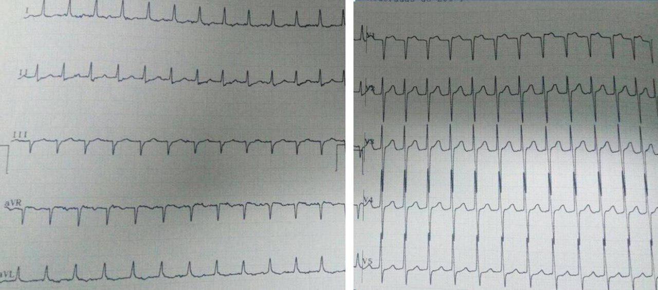 Paciente masculino con palpitaciones en cuello por TRIN