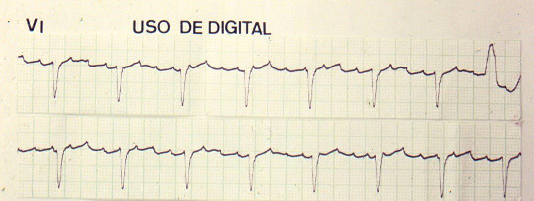 Paciente con aleteo auricular 4:1 por intoxicación digitálica