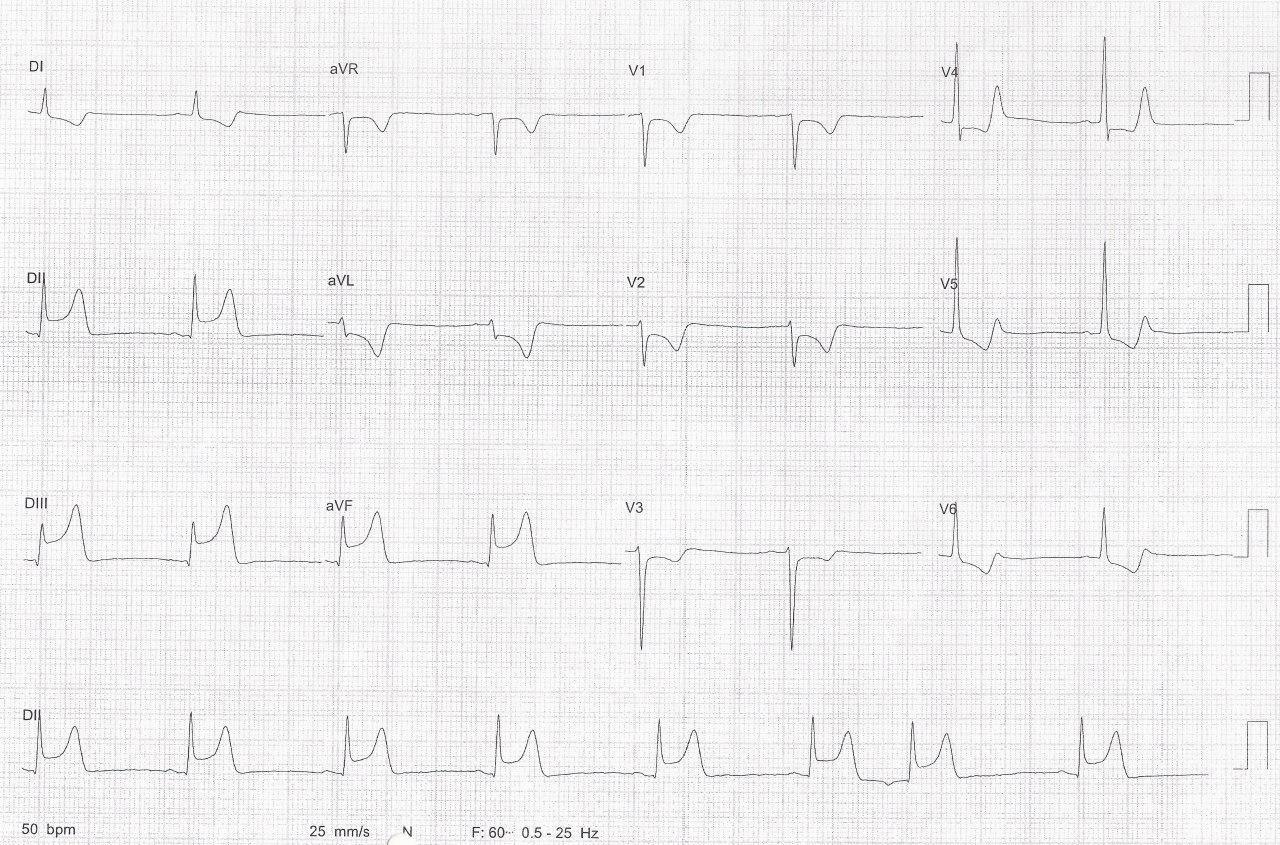 Hombre de 59 años con FR que presenta angor prolongado y se constata IAM con arterias coronarias normales