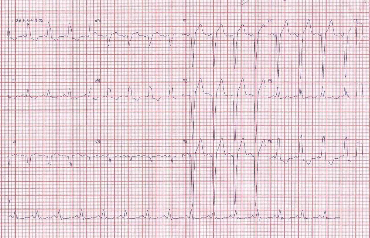 Trazados correspondientes a un paciente con estenosis aórtica severa con gradiente VI – Ao de 100 mm de Hg