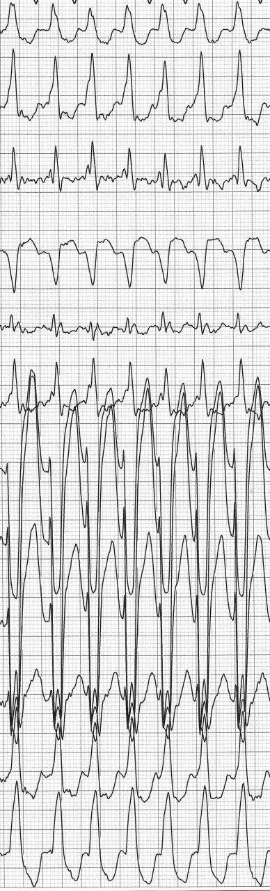 Holter de 12 derivaciones de joven con palpitaciones por presentar FA preexitada