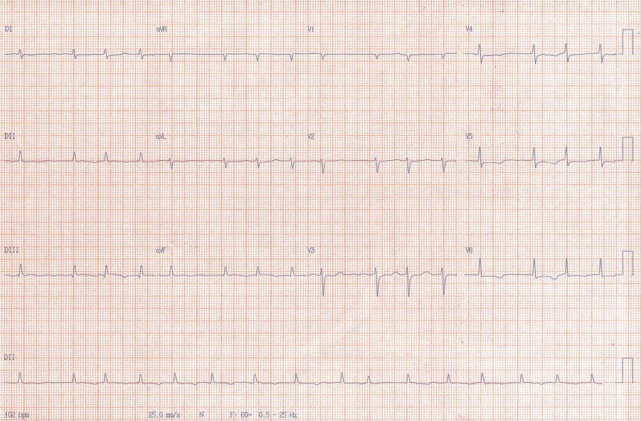 Mujer de 75 años con múltiples factores de riesgo presenta FA y angor prolongado por embolia coronaria que requiere aspiración de trombo y stent
