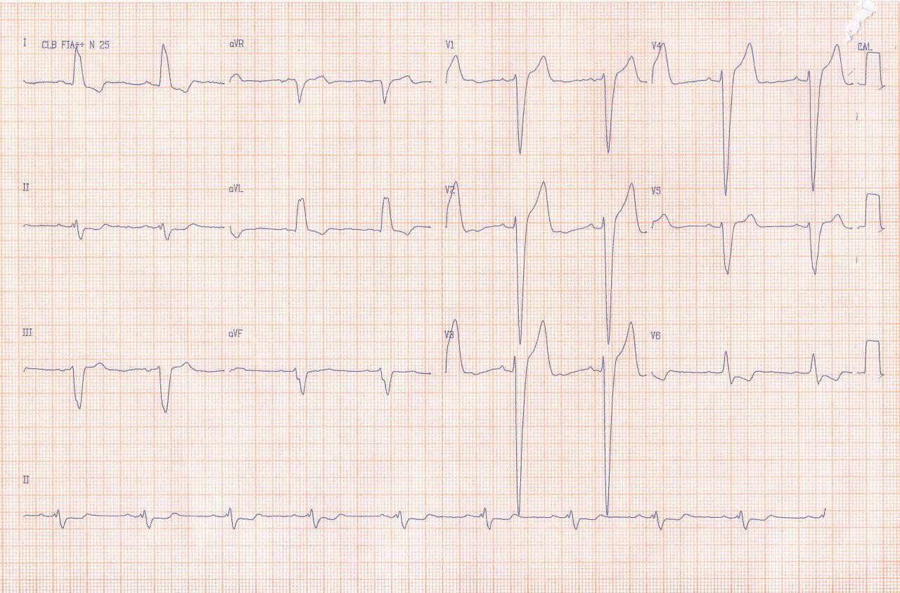 Paciente de 69 años diabético y con antecedente de by pass Ao-coronario hace 7 años que presenta episodio sincopal