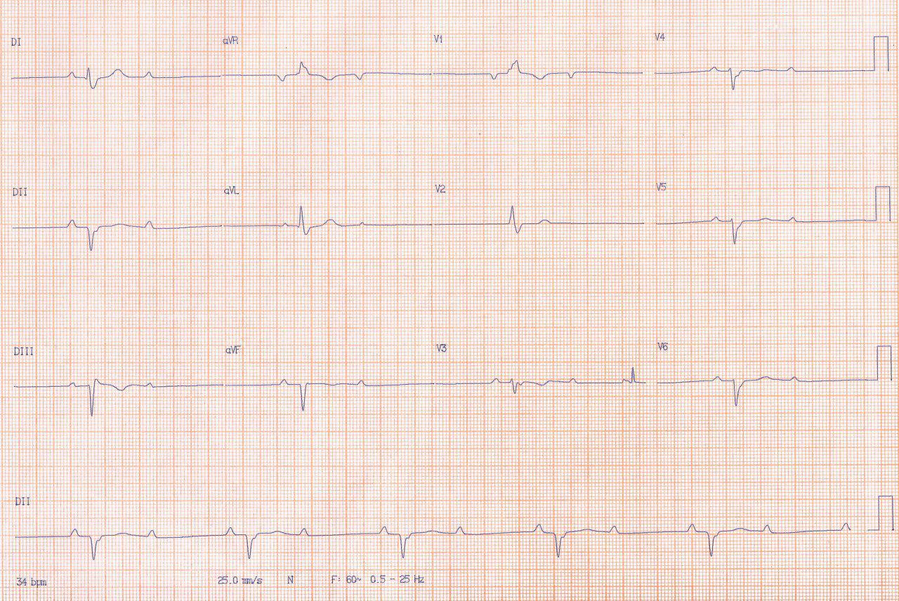 Masculino de 80 años con enfermedad coronaria multivasos que presenta episodios sincopales