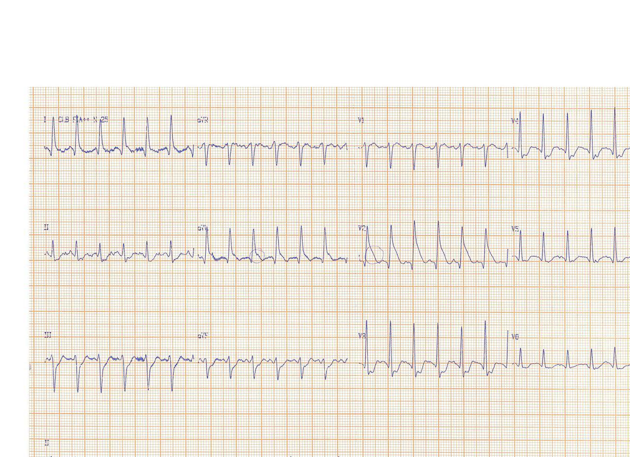 Paciente de 31 años que presenta ondas Lambda en el ECG por hemorragia subaracnoidea