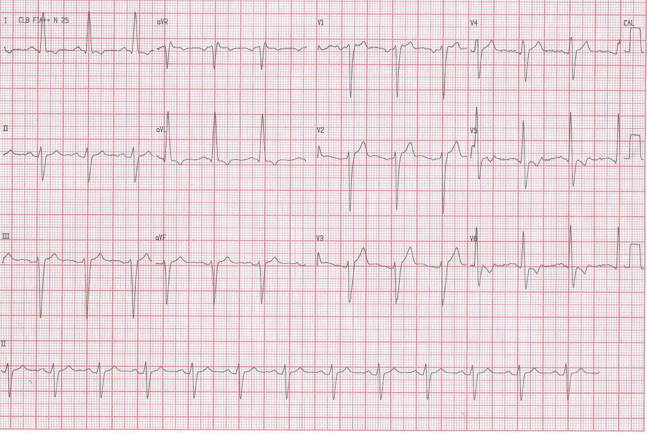 Paciente de 48 años portador de bioprótesis aórtica que cursa endocarditis infecciosa con abseso que determina BAV y es extirpado exitosamente