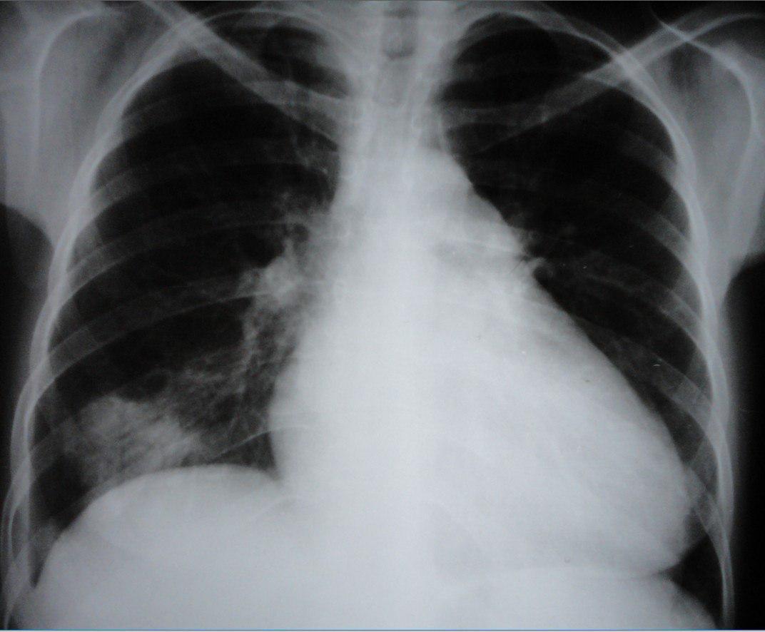 Mujer de 35 años portadora de insuficiencia cardíaca que presenta cuadro de TEP e infarto pulmonar