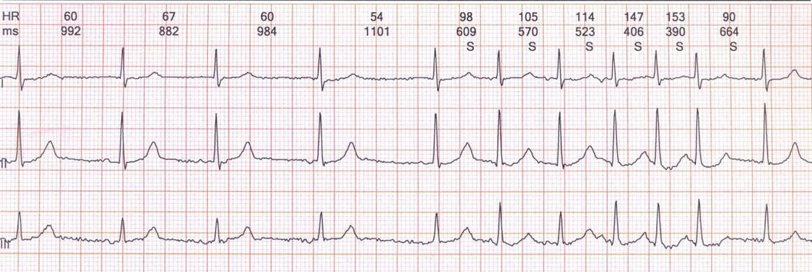 Anciano con antecedente de ACV y Síndrome de Bayés en el que se muestra la onda P característica en VI predictora de FA paroxística, introducida por Morris en 1964