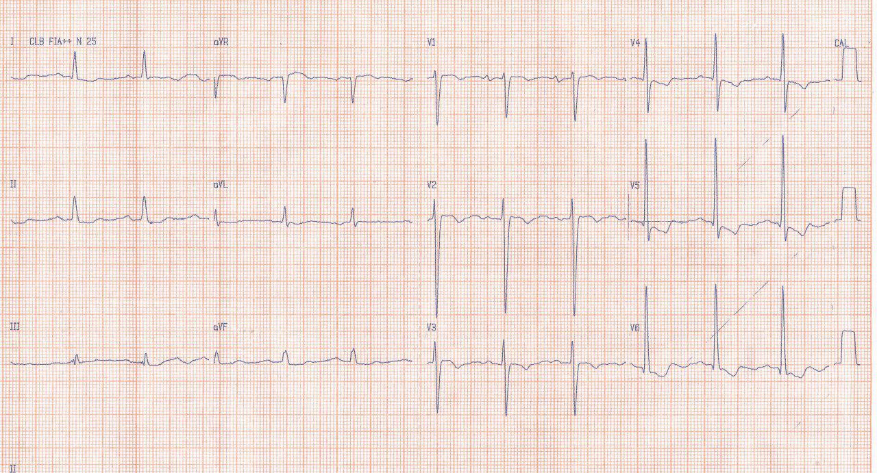 Mujer de 54 años hipertensa no controlada que presenta soplo de regurgitación aórtica por rara disección indolora