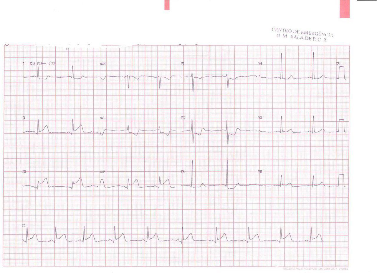 Paciente de 43 años consumidor de cocaína que presenta angor prolongado y paro cardíaco con CCG con arterias coronarias normales