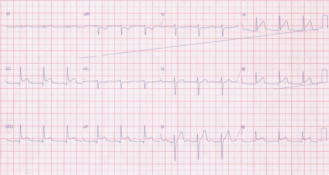 Paciente de 24 años con angor prolongado y coronarias normales por miocarditis aguda