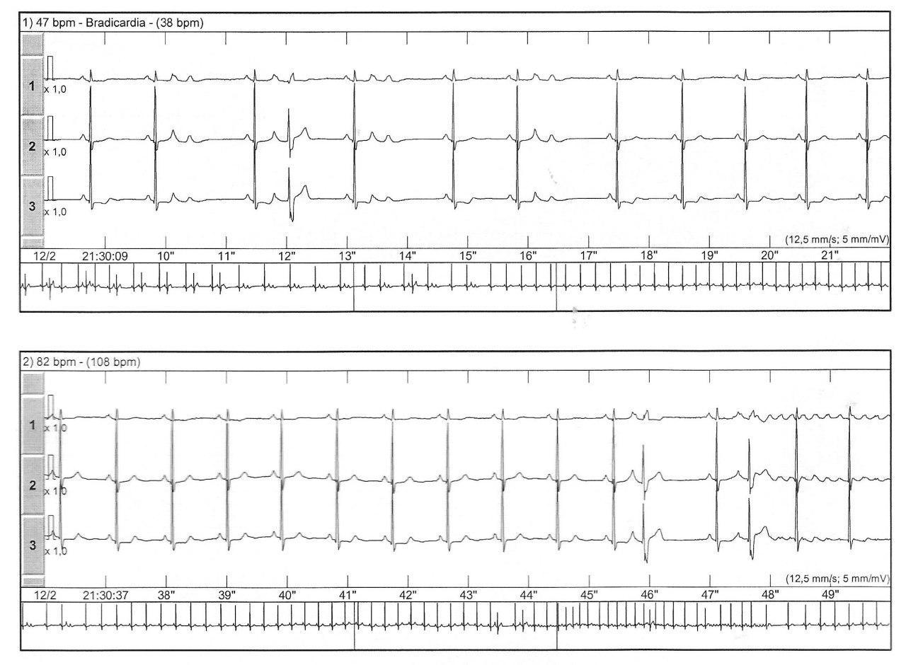 Holter de anciano con palpitaciones y déficit cognitivo por probables microembolias a partir de aleteo auricular