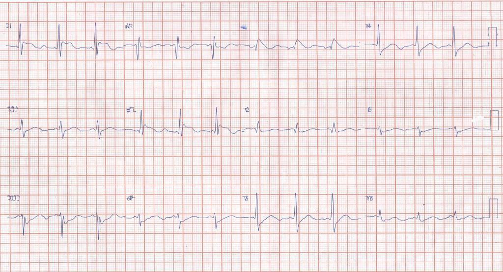 Paciente que a posteriori de inducción anestésica con propofol desarrolla episodio de FA detectándose patrón Brugada tipo I