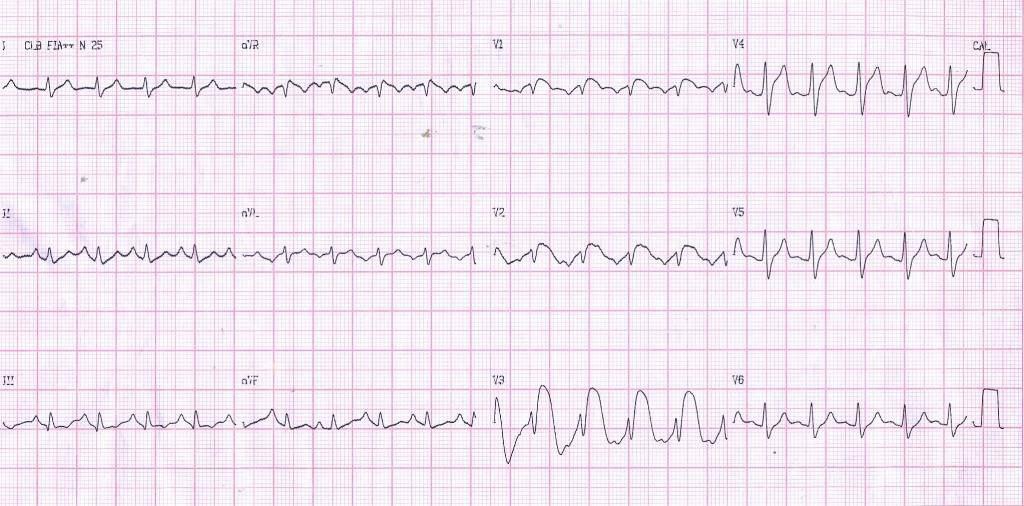 ECG típico de SVD en enfisema de un paciente con hiperpotasemia y acidosis respiratoria dando un patrón de Fenocopia de Brugada, que se corrigen