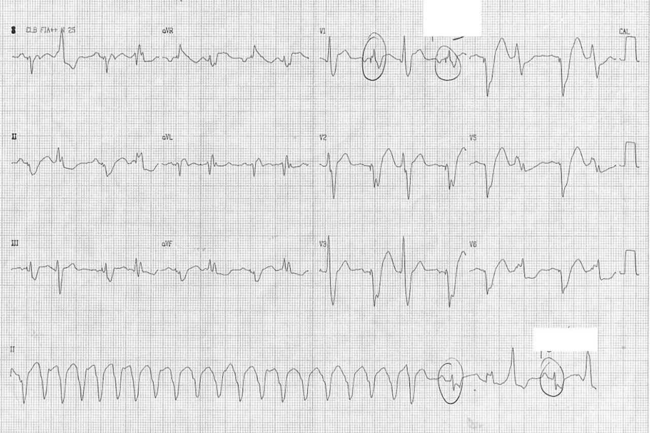 Mujer de 67 años portadora de miocardiopatía dilatada e implante de CDI que toma irregularmente su medicación que luego se optimiza