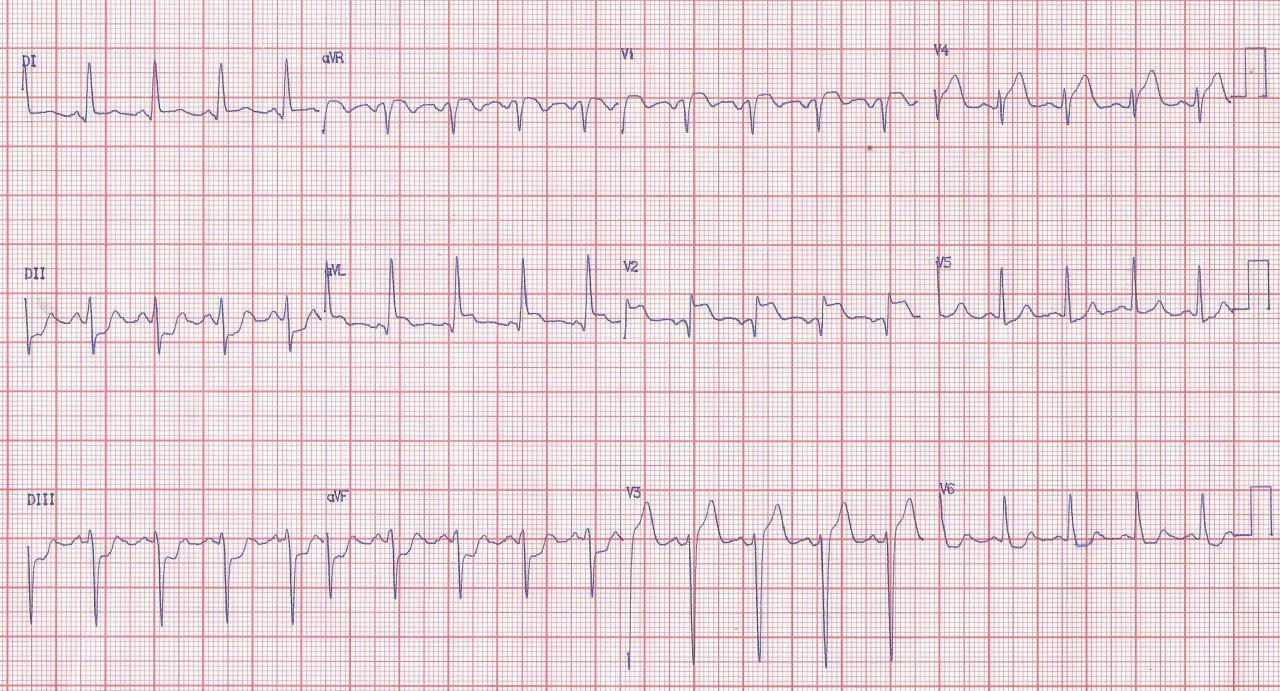 Paciente de 67 años con angor prolongado por compromiso de DA y Cx, hemodinámicamente compensado por la presencia de circulación colateral
