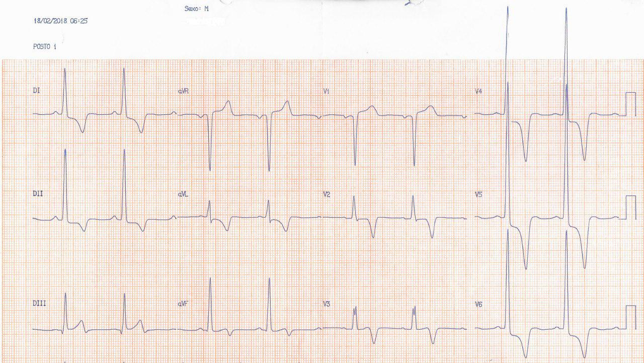 Paciente de 46 años con muy severa HVI por miocardiopatía hipertrófica obstructiva