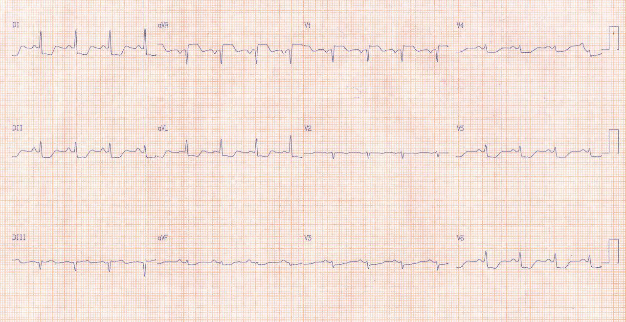 Mujer de 59 años con angor prolongado y EAP con ECG compatible con SCA que presenta estenosis aórtica severa