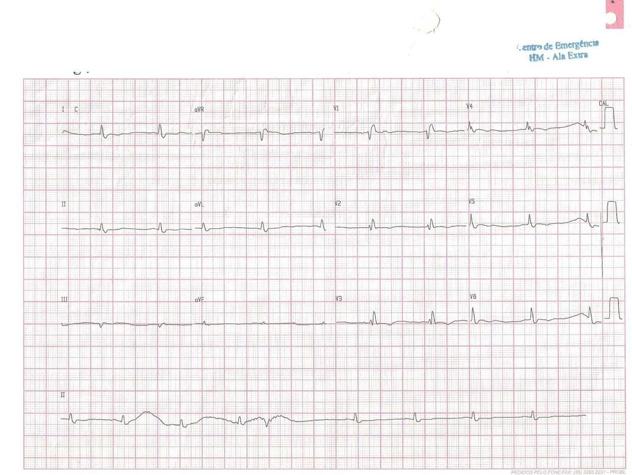 Paciente de 59 años chagásico con hipotiroidismo y anemia severa que presenta angor y disnea por enfermedad coronaria multivaso