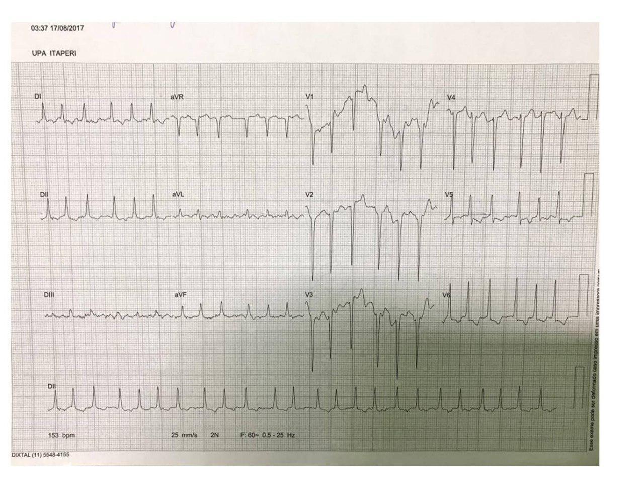Paciente de 40 años que presenta FA de alta respuesta que desarrolla taquimiocardiopatía que revierte luego de tratamiento con mapeo y ablación