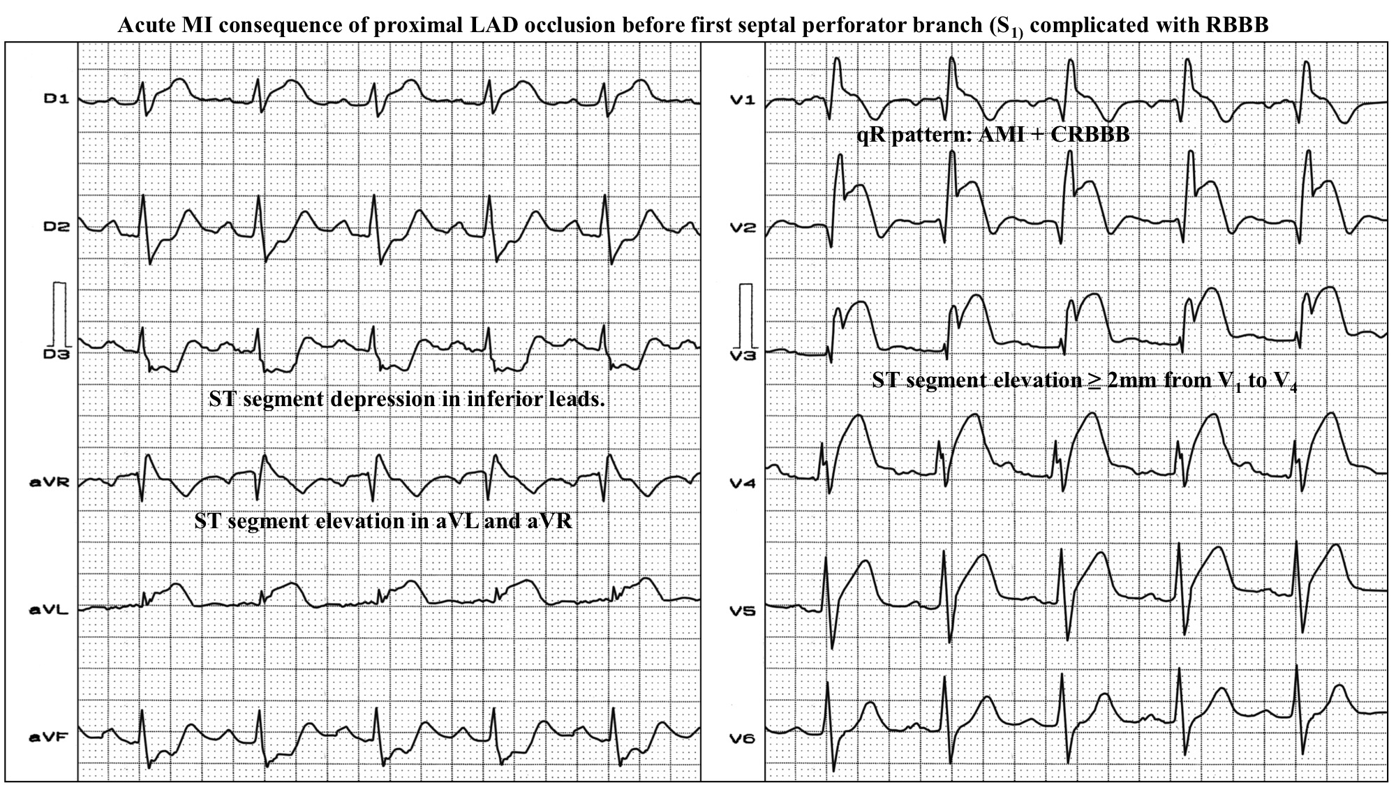 Acute MI consequence of proximal LAD occlusion before first septal perforator branch (S1) complicated with RBBB