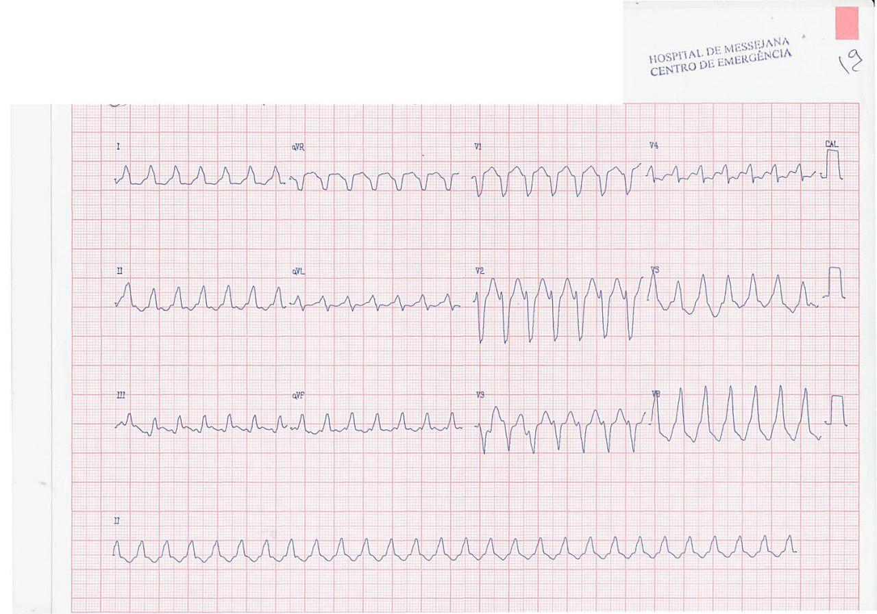 Paciente hipertenso que presenta palpitaciones rápidas por aleteo auricular 1:1 con aberrancia de BCRI que pasa a BAV 2:1 con MSC y luego BAV variable sin aberrancia