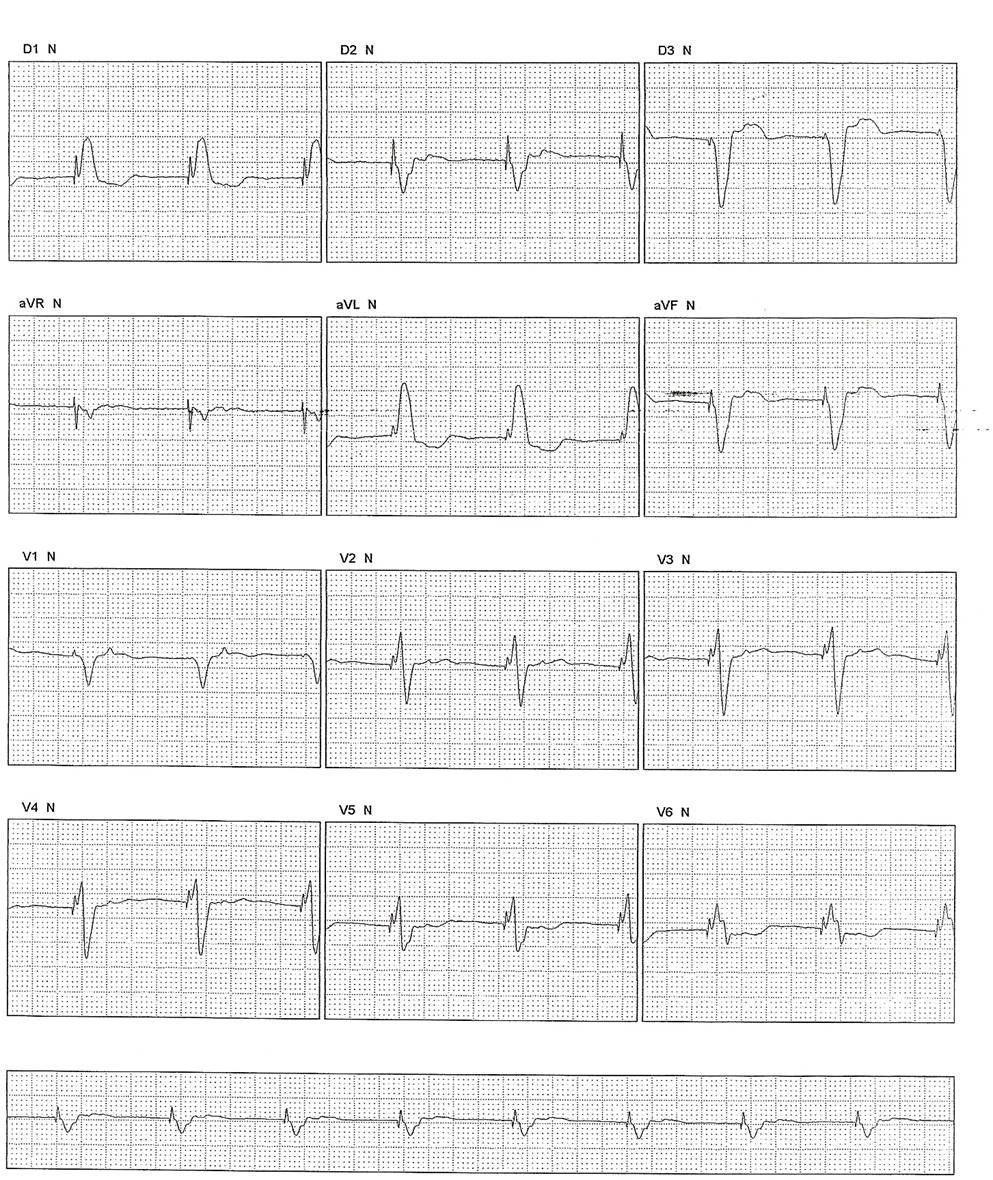 Paciente que 6 semanas a posteriori de implante de MP unicameral con estimulación VVI desarrolla cuadro de disnea por retroconducción VA (síndrome de MP) síntomas que desaparecen al cambiarse el dispositivo a DDD