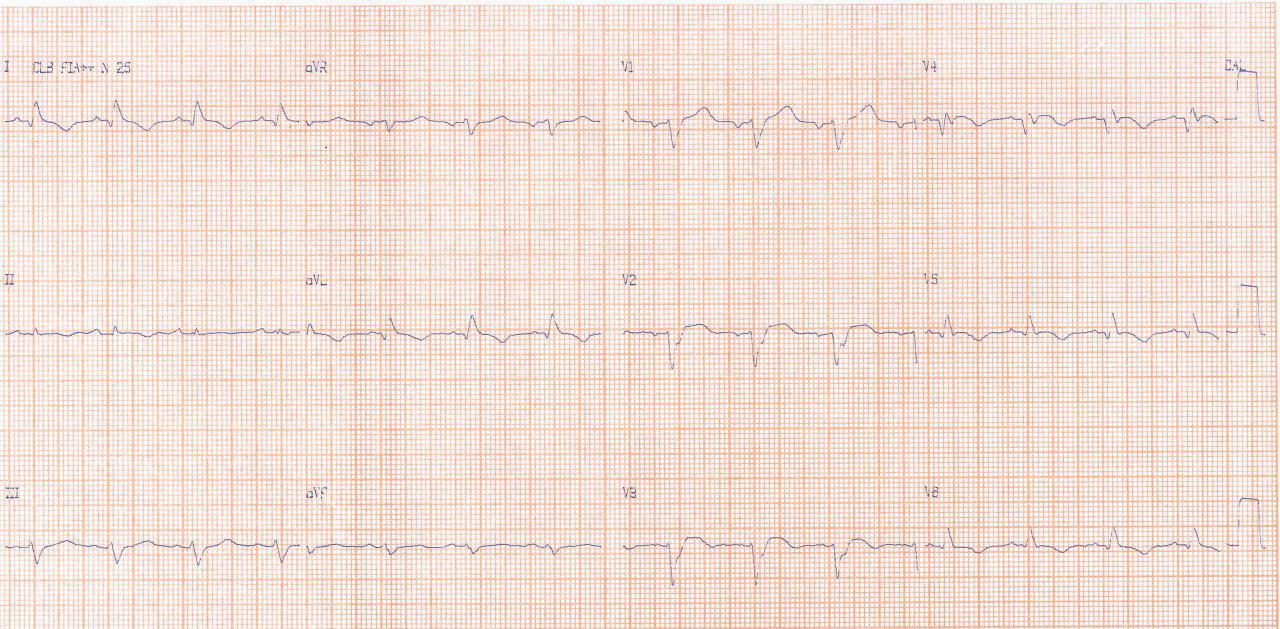 Paciente de 53 años que presenta IAM anterior hace 4 días realizándose PCI presentando déficit neurológico focal con constatación de aneurisma apical del VI con trombo
