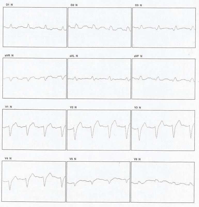 Paciente de 55 años con disnea y palpitaciones que presenta una miocardiopatía no compactada