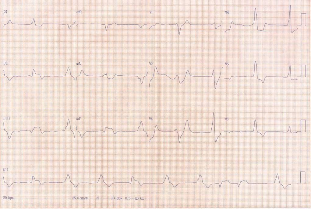 Hombre de 54 años que cursa IAMCEST ínferobasal por compromiso de arteria Cx con imagen especular que evoluciona al shock cardiogénico y óbito