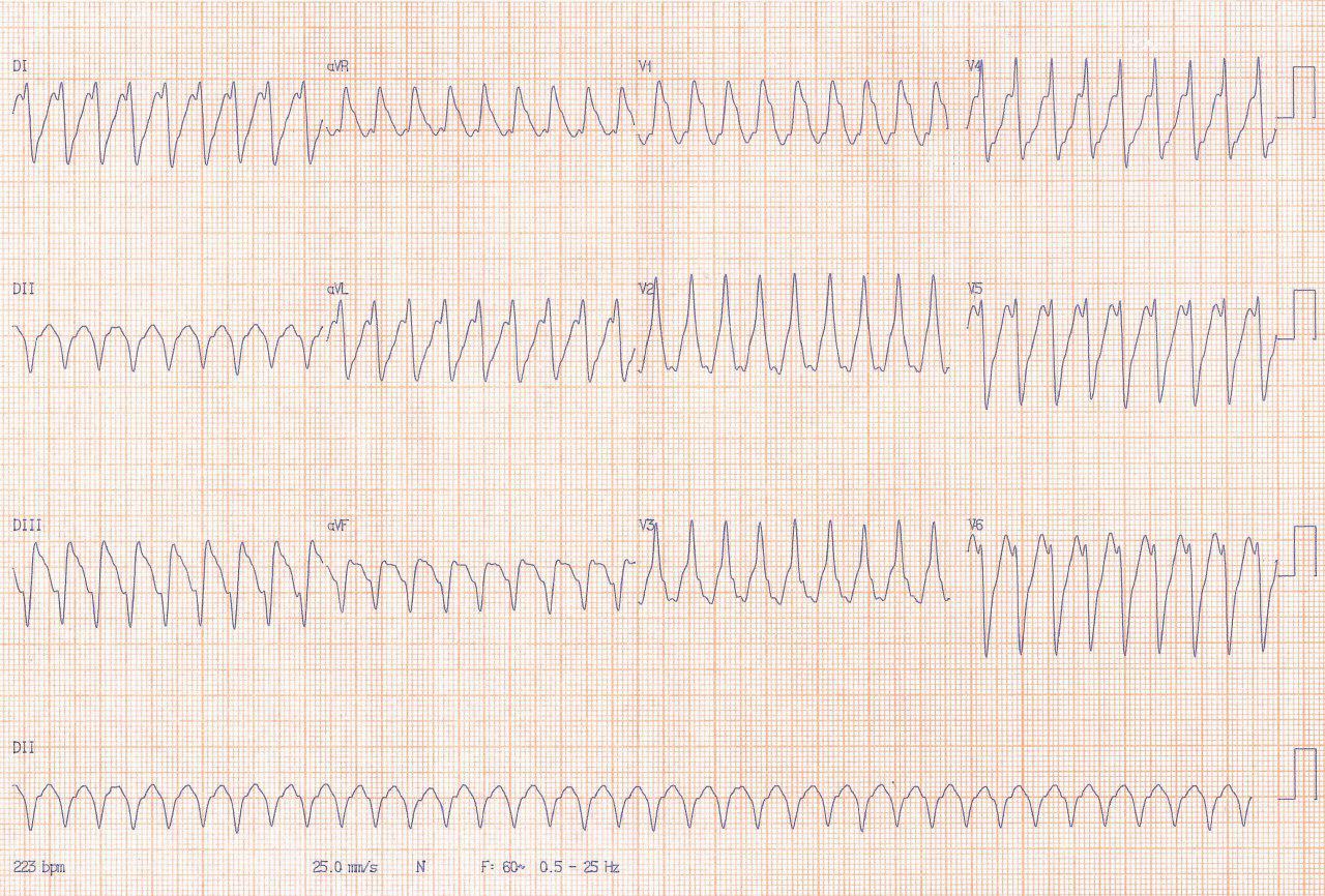 Hombre con antecedentes de SCA e implante de stent fármacoactivo hace 5 meses que presenta taquicardia ventricular que revierte con CVE presentando ritmo de la unión