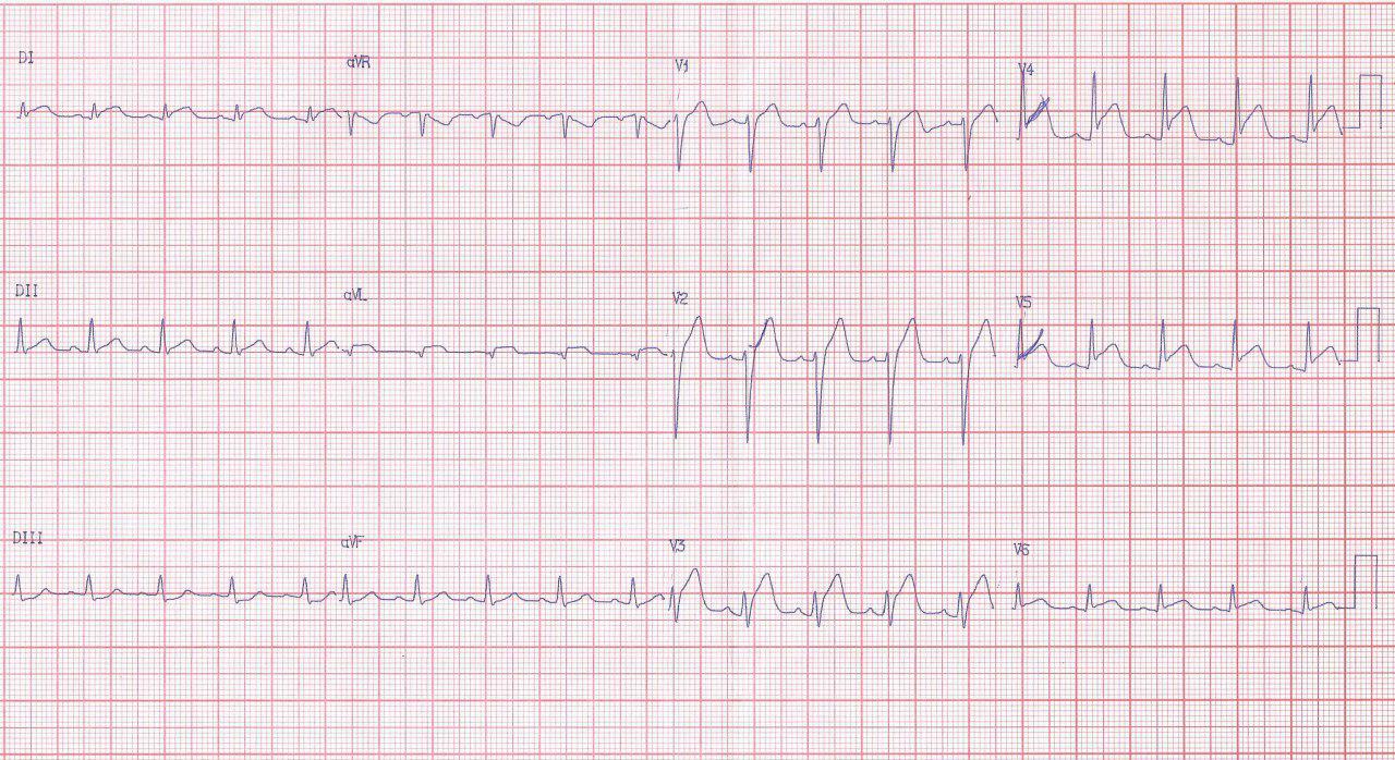 Masculino de 18 años con dolor precordial y aumento de troponina por miopericarditis aguda