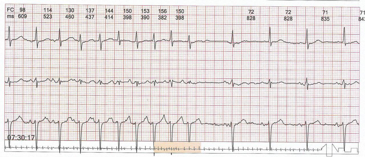 Hombre hipertenso con palpitaciones por presentar taquicardia auricular en el contexto de BIA parcial configurando un Síndrome de Bayes