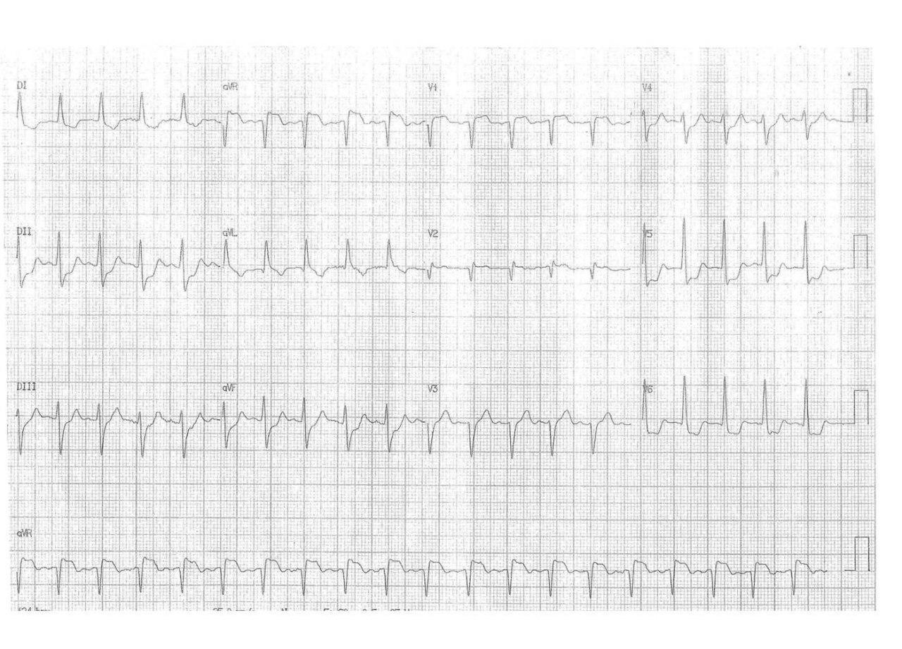 Paciente de 66 años que durante la evolución de erisipela de MI presenta cuadro de diaforesis e insuficiencia respiratoria por isquemia circunsferencial por lesión de TCI, CD y Cx